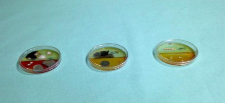 esame-colturale-micologico